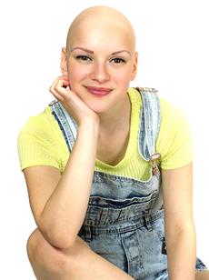 Joelle joelle image singer alopecia uk official website Skoobie Dootle
