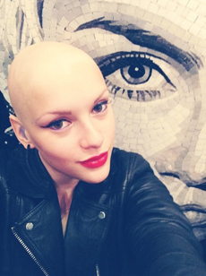 Joelle joelle singer mosaic alopecia image picture photo Skoobie Dootle Official Website
